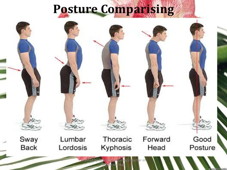Posture Comparising    Created by Alfie Msk_A Biology teacher of                 GIS Junior High
