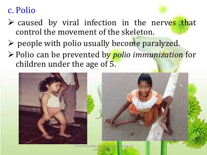 c. Polio caused by viral infection in the nerves that  control the movement of the skeleton. people with polio usually b...