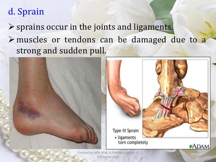 d. Sprain sprains occur in the joints and ligaments. muscles or tendons can be damaged due to a  strong and sudden pull....