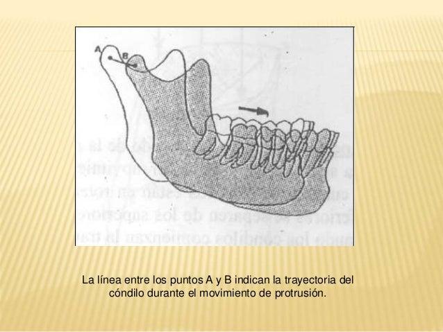 LATERALIDAD   LADO DE TRABAJO (LATEROTRUSIÓN):  lado de la mandíbula que se aleja del plano  medio sagital, hacia donde s...