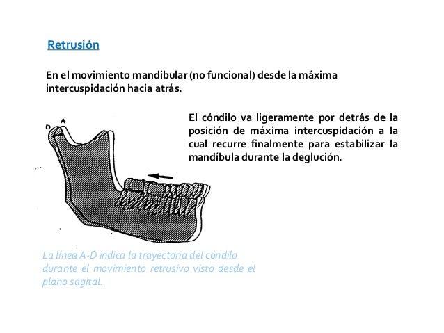 RetrusiónEn el movimiento mandibular (no funcional) desde la máximaintercuspidación hacia atrás.                          ...