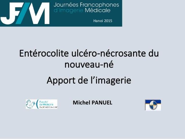 Entérocolite ulcéro-‐nécrosante du  nouveau-‐né    Apport de l'imagerie    Michel  PANUEL   Hanoi  2015 ...