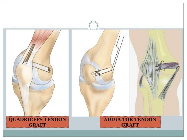 Medial Patellofemoral Ligament Mpfl Reconstruction 2014