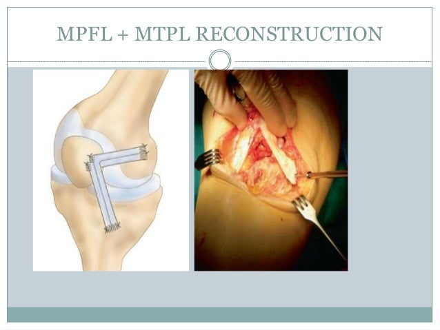 Medial Patellofemoral Ligament Mpfl Reconstruction 2014