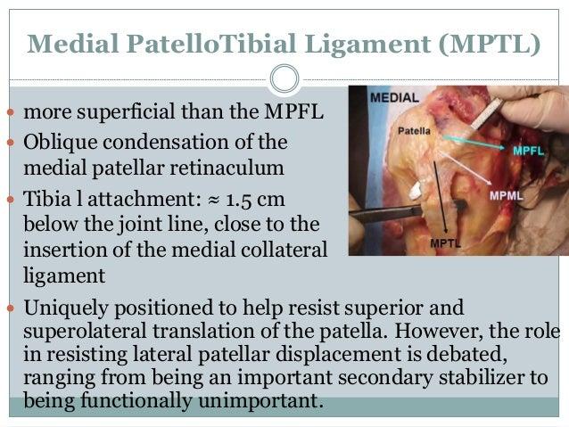 Medial Patellofemoral Ligament (MPFL) reconstruction 2014