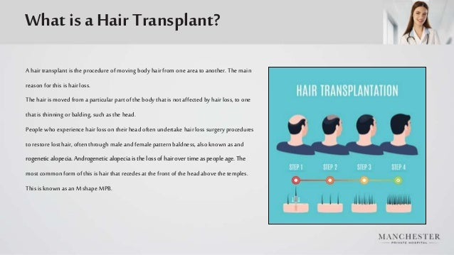 What is a Hair Transplant? A hairtransplant is the procedure of moving body hair from one area to another. The main reason...