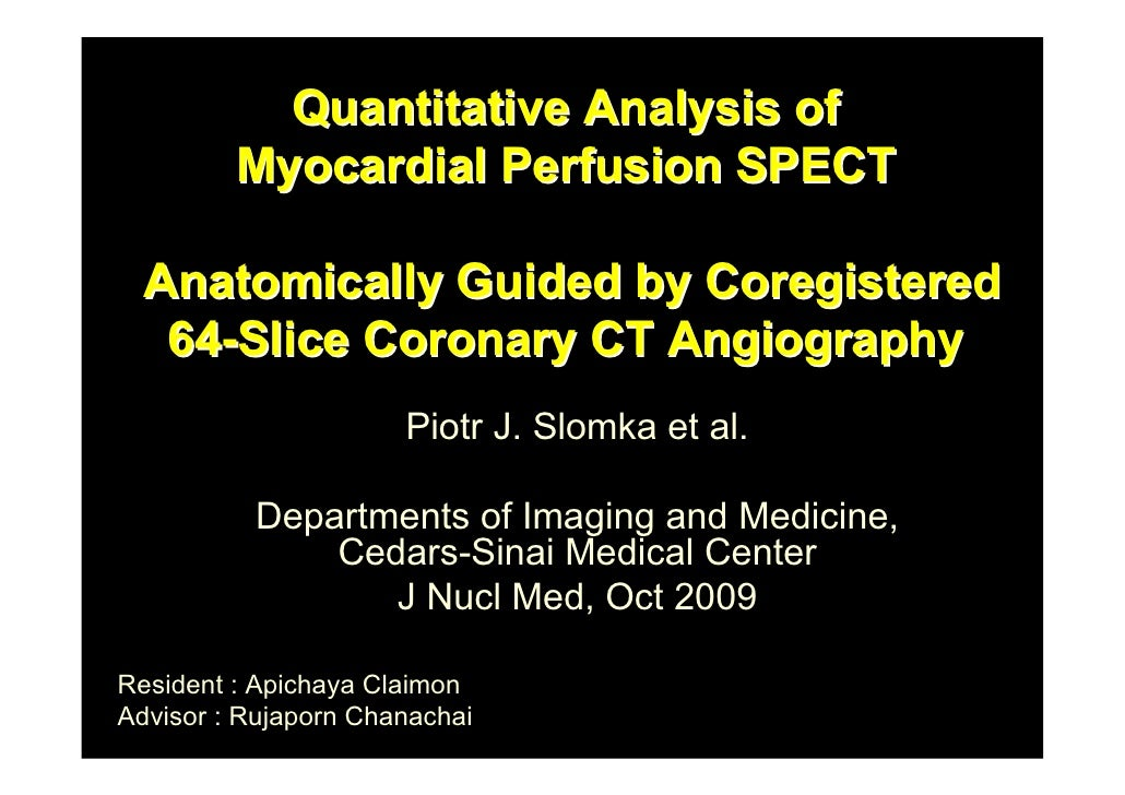 Quantitative Analysis of          Myocardial Perfusion SPECT    Anatomically Guided by Coregistered    64-Slice Coronary C...