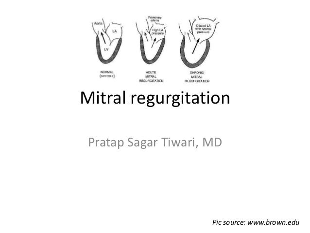 Mitral regurgitation Pratap Sagar Tiwari, MD Pic source: www.brown.edu