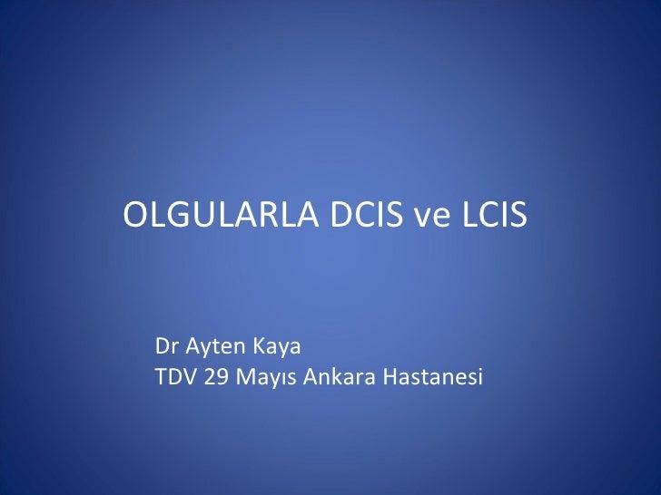 OLGULARLA DCIS ve LCIS Dr Ayten Kaya TDV 29 Mayıs Ankara Hastanesi
