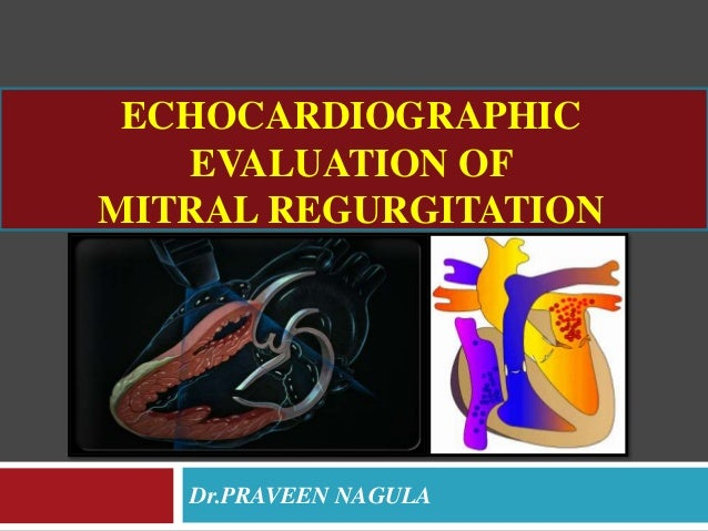 ECHOCARDIOGRAPHIC EVALUATION OF MITRAL REGURGITATION Dr.PRAVEEN NAGULA
