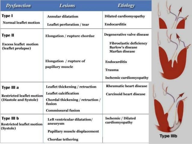 Mitral valve prolapse vs mitral regurgitation
