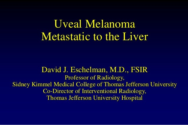 Uveal Melanoma Metastatic to the Liver David J. Eschelman, M.D., FSIR Professor of Radiology, Sidney Kimmel Medical Colleg...