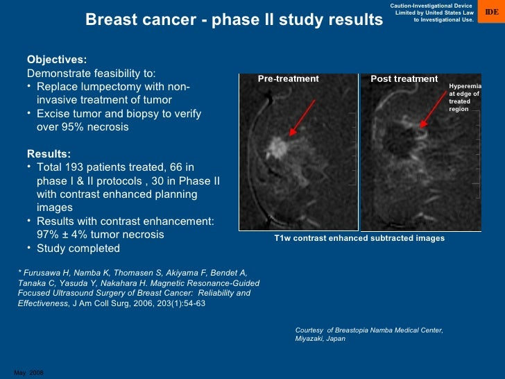 The TAILORx Breast Cancer Trial - National Cancer Institute
