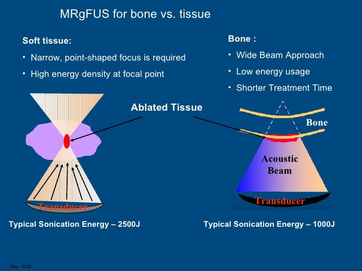 Mr Guided Focused Ultrasound Mrgfus Overview Of Present