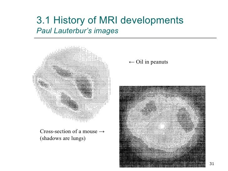 historical report on paul lauterbur Nuclear magnetic resonance, part 2: fourier transformation,  in order to report the resonant frequencies of the samples  as proposed by paul lauterbur,.