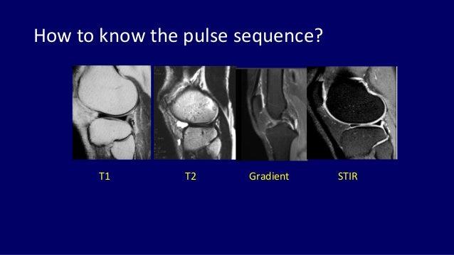 Mri Anatomy Of Knee Dr Muhammad Bin Zulfiqar