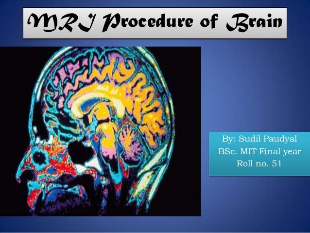 MRI Procedure of Brain By: Sudil Paudyal BSc. MIT Final year Roll no. 51