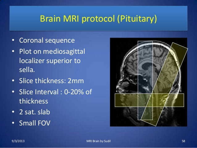 Parameters positioning mri pdf and