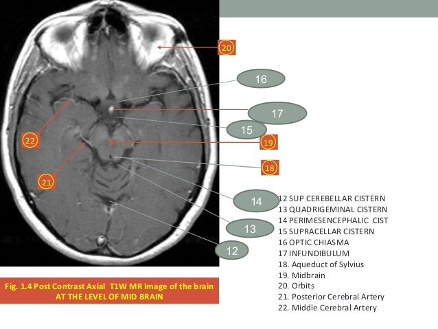 Mri Brain Basics And Radiological Anatomy