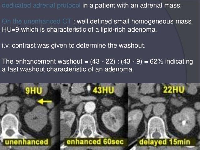 Adrenal: Adrenal Nodule Washout