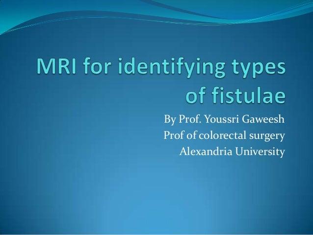 By Prof. Youssri GaweeshProf of colorectal surgery   Alexandria University