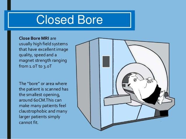 wide bore mri machine