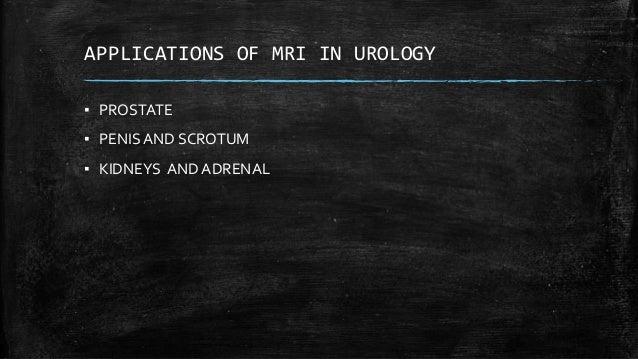 Mri in urology Slide 2