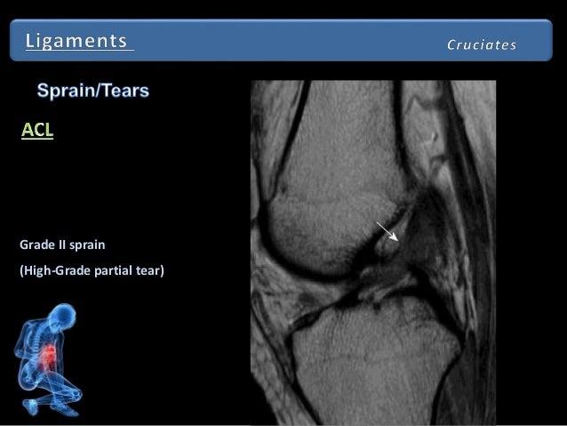 Abnormal Knee Mri