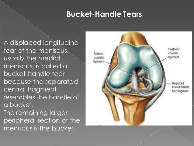mri knee trauma