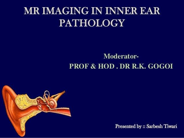 MR IMAGING IN INNER EAR      PATHOLOGY               Moderator-       PROF & HOD . DR R.K. GOGOI                  Presente...