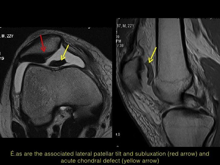 MRI of patellar disorders