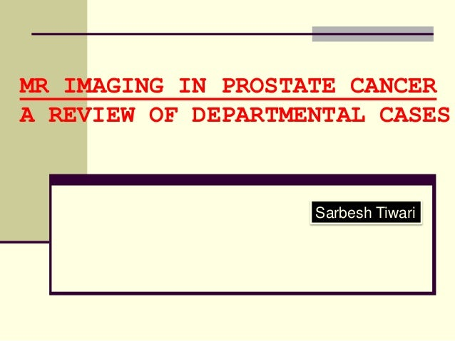 MR IMAGING IN PROSTATE CANCERA REVIEW OF DEPARTMENTAL CASES                    Sarbesh Tiwari