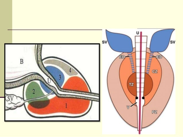 Prostate Zonal Diagram Of The - Auto Electrical Wiring Diagram •