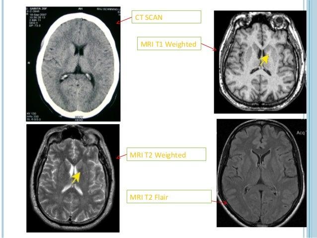 CT SCAN   MRI T1 WeightedMRI T2 WeightedMRI T2 Flair