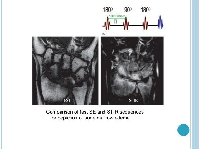 FSE                        STIRComparison of fast SE and STIR sequences for depiction of bone marrow edema