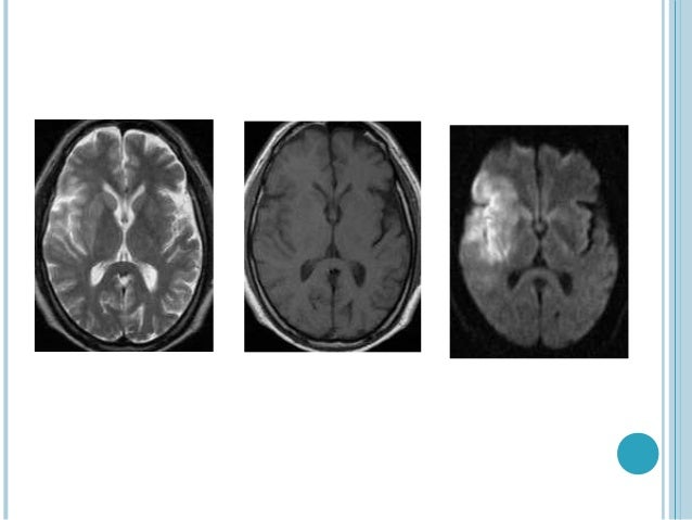    Ischemic Stroke    Extra axial masses: arachnoid cyst versus epidermoid tumor    Intracranial Infections           P...