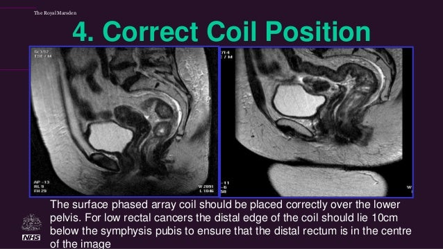 Mri Techniques For Rectal Cancer