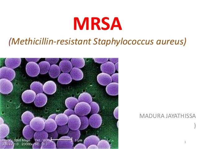 """methicillin resistant staphylococcus aureus mrsa essay Mrsa: an evolving """"super-bug"""" epidemic mrsa stands for methicillin-resistant staphylococcus aureus (mrsa) and is a bacterial infection that is highly resistant to."""