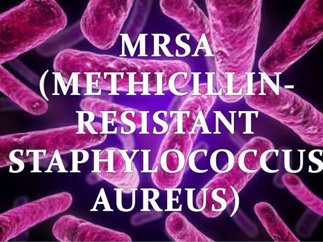 HISTORY  Bacteriologist Professor Patricia Jevons discovers first  Methicillin-resistant Staphylococcus aureas (MRSA) in 1...
