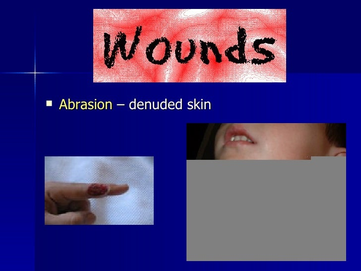 Denuded wound Nude Photos 59
