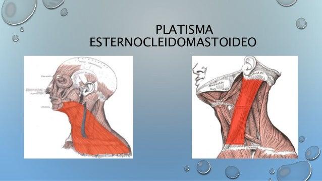 Músculos de cráneo, cara y cuello