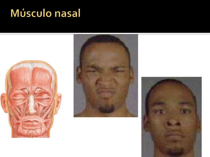 Porción nasal del hueso frontal, división de la porción orbitaria del músculo orbicular de los ojos