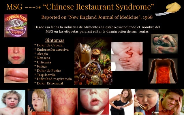 Chinese Restaurant Syndrome Treatment
