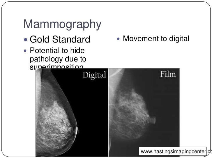 "breast tomosynthesis disadvantages Should i ""upgrade"" to digital or 3d a mammography guide by are diagnosed with breast of digital breast tomosynthesis versus digital."
