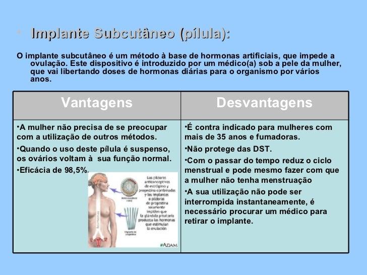 <ul><li>Implante Subcutâneo (pílula): </li></ul><ul><li>O implante subcutâneo é um método à base de hormonas artificiais, ...