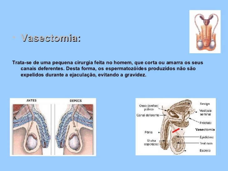 <ul><li>Vasectomia: </li></ul><ul><li>Trata-se de uma pequena cirurgia feita no homem, que corta ou amarra os seus canais ...