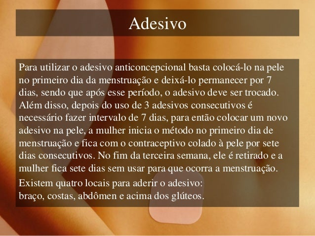 Artesanato Com Tecido De Guarda Chuva ~ Métodos anticoncepcionais