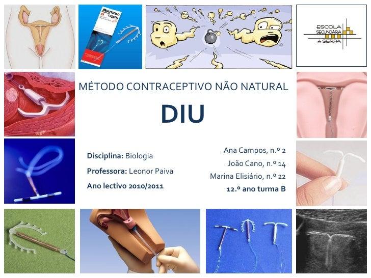 MÉTODO CONTRACEPTIVO NÃO NATURAL                        DIU                                  Ana Campos, n.º 2 Disciplina:...