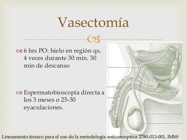 Espermatobioscopia directa