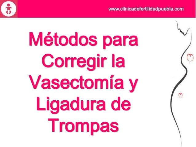 Métodos para Corregir la Vasectomía y Ligadura de Trompas